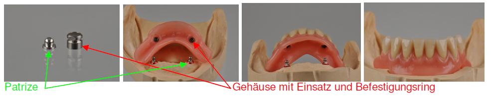 Projekt Pro-Snap: Zahnprothese